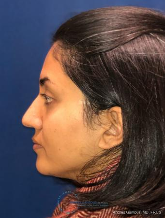 Rhinoplasty: Patient 84 - After Image 6