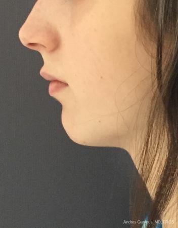 Chin Augmentation: Patient 6 - Before and After Image 2