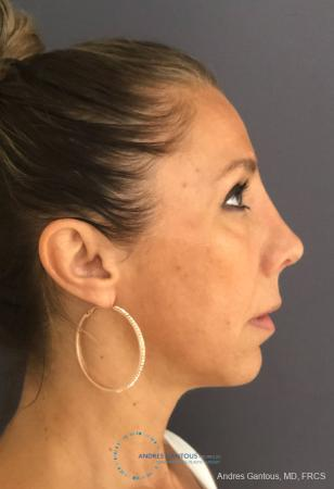 Revision Rhinoplasty: Patient 3 - After Image 5