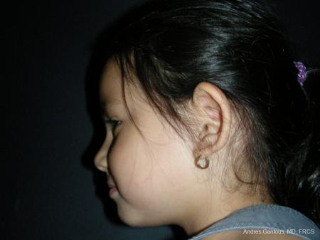 Otoplasty And Earlobe Repair: Patient 21 - Before Image 5