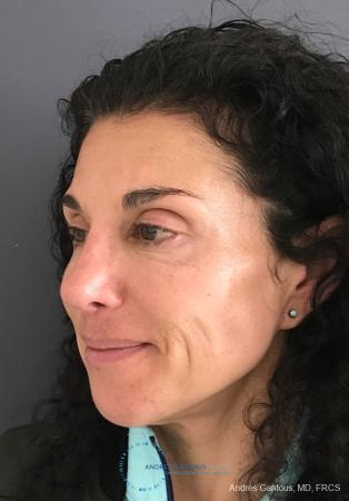 Revision Rhinoplasty: Patient 6 - After Image 3
