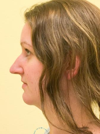 Rhinoplasty: Patient 66 - Before Image 5