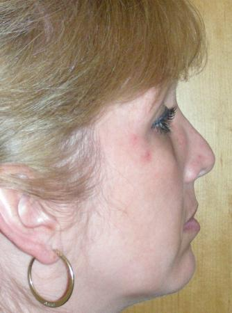 Revision Rhinoplasty: Patient 16 - Before Image 5