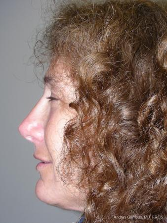 Rhinoplasty: Patient 17 - After Image 3