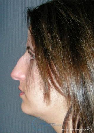 Rhinoplasty: Patient 95 - Before and After Image 6