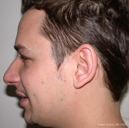 Otoplasty And Earlobe Repair: Patient 1 - After Image 3