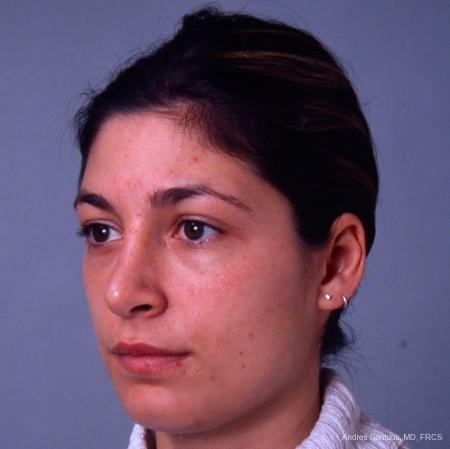 Rhinoplasty: Patient 33 - After Image 2