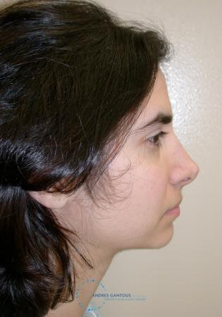 Revision Rhinoplasty: Patient 15 - Before and After Image 6