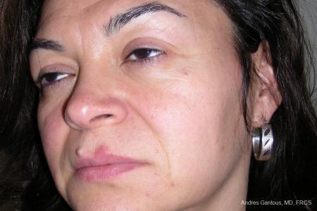 Eyelid Lift: Patient 2 - Before and After Image 2