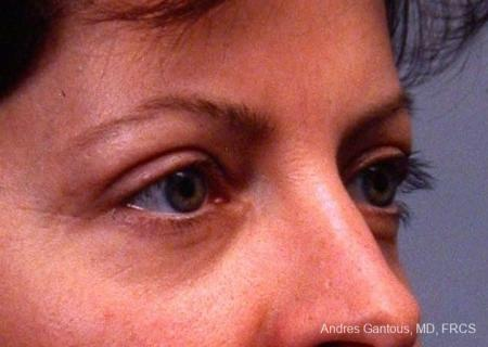 Eyelid Lift: Patient 4 - After Image 2
