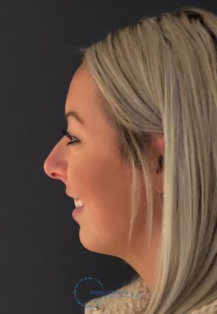 Rhinoplasty: Patient 73 - Before Image 5