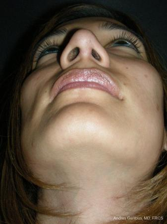 Rhinoplasty: Patient 58 - After Image 6