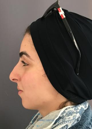 Rhinoplasty: Patient 60 - Before and After Image 6