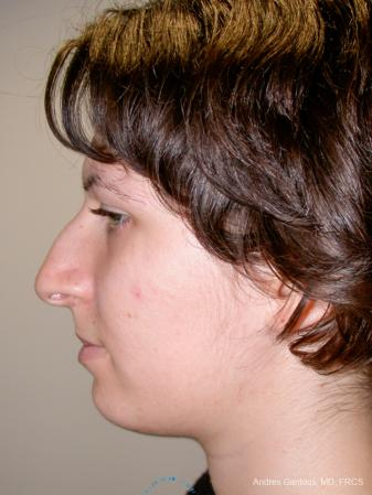 Rhinoplasty: Patient 93 - Before and After Image 5