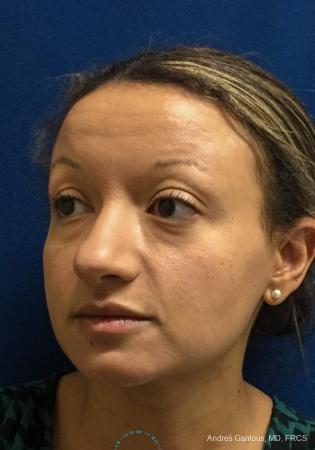 Rhinoplasty: Patient 93 - Before 4