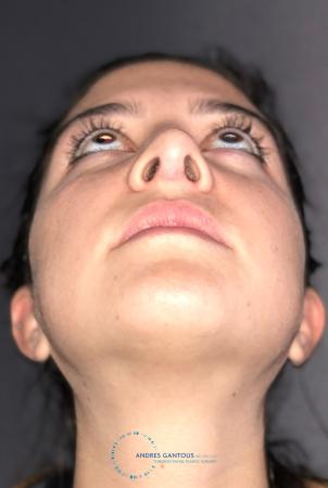 Revision Rhinoplasty: Patient 21 - After Image 2