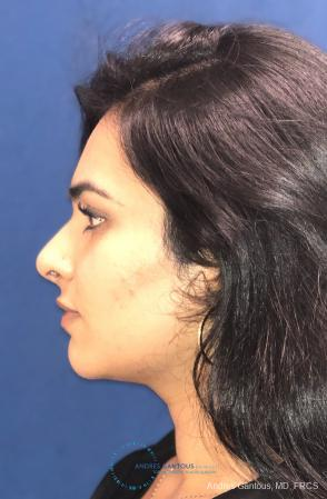 Rhinoplasty: Patient 88 - After Image 6
