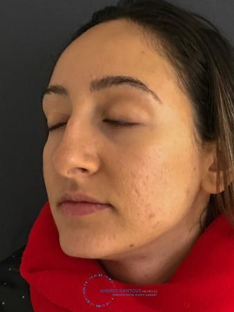 Rhinoplasty: Patient 62 - Before Image 4