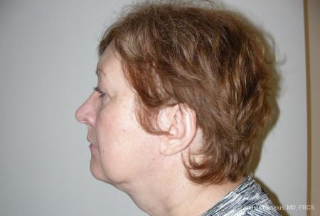Facelift & Neck Lift: Patient 9 - Before and After Image 5