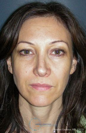Revision Rhinoplasty: Patient 14 - After Image 1