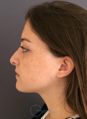 Revision Rhinoplasty: Patient 21 - Before Image 5