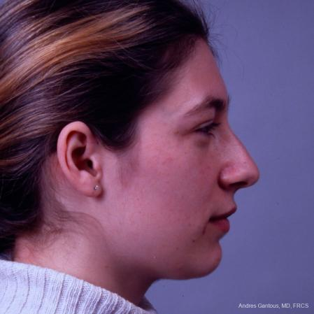 Rhinoplasty: Patient 33 - Before and After Image 5