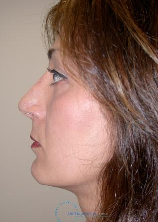 Revision Rhinoplasty: Patient 17 - After 4