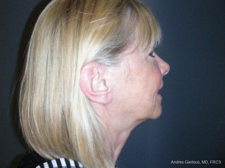 Facelift & Neck Lift: Patient 10 - After Image 3