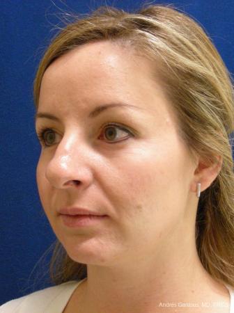 Rhinoplasty: Patient 28 - Before Image 3