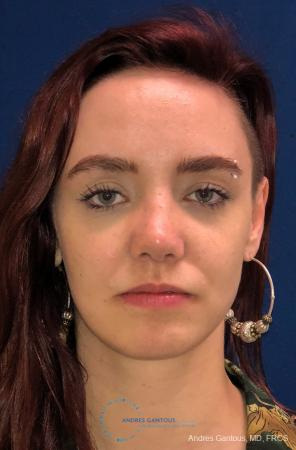 Revision Rhinoplasty: Patient 11 - After Image 1