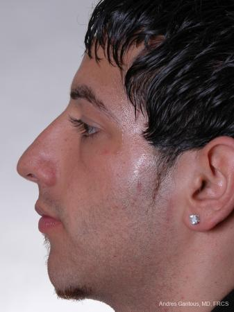 Rhinoplasty: Patient 13 - Before Image 2