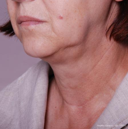 Facelift & Neck Lift: Patient 2 - Before and After Image 2