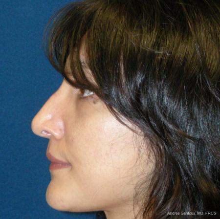 Rhinoplasty: Patient 43 - After Image 4