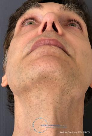 Rhinoplasty: Patient 81 - After Image 2