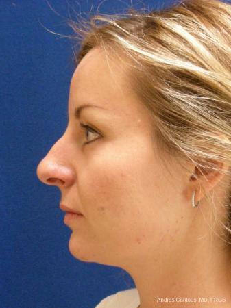 Rhinoplasty: Patient 28 - Before and After Image 5