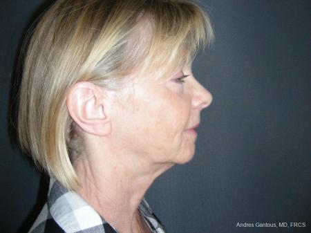 Facelift & Neck Lift: Patient 10 - Before Image 3