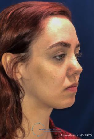 Revision Rhinoplasty: Patient 10 - Before Image 4