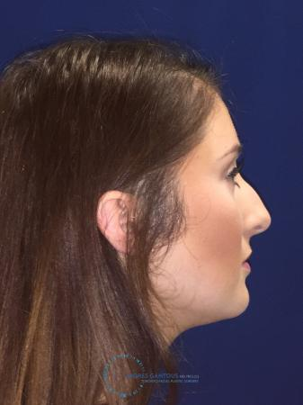 Rhinoplasty: Patient 1 - Before and After Image 6