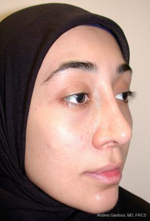 Revision Rhinoplasty: Patient 5 - Before Image 3