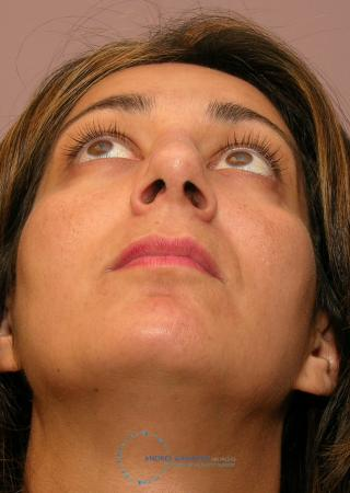 Revision Rhinoplasty: Patient 19 - After Image 2
