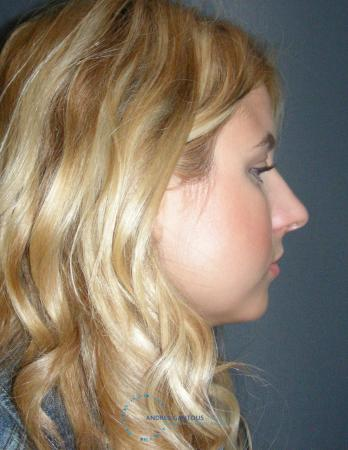 Rhinoplasty: Patient 72 - Before Image 5