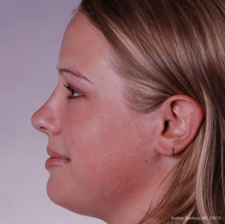 Reconstructive Rhinoplasty: Patient 3 - After Image 3