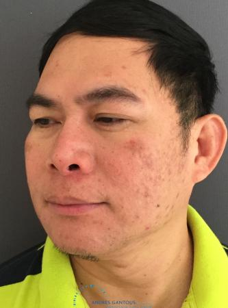 Rhinoplasty: Patient 65 - After Image 4