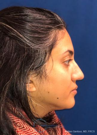Rhinoplasty: Patient 84 - After Image 5