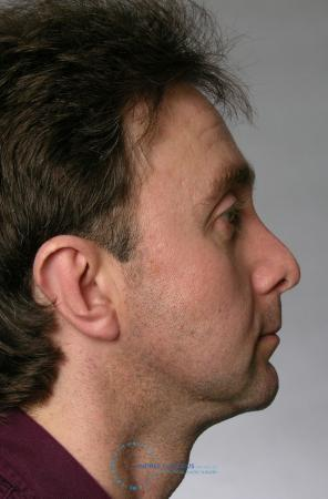 Revision Rhinoplasty: Patient 20 - Before Image 3
