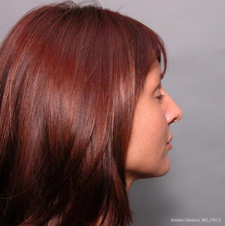 Rhinoplasty: Patient 38 - Before Image 2