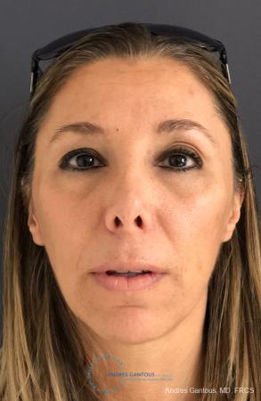 Revision Rhinoplasty: Patient 3 - Before Image 1