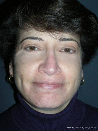 Rhinoplasty: Patient 51 - After Image 1