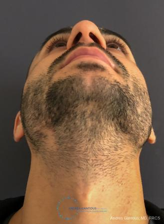 Rhinoplasty: Patient 91 - Before Image 2