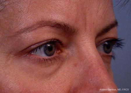 Eyelid Lift: Patient 4 - Before and After Image 2